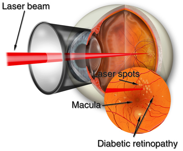 A section through the eye showing a laser beam and close up detail of the retina.