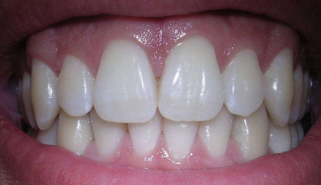 Close up picture of someone showing their very white teeth and healthy gums.