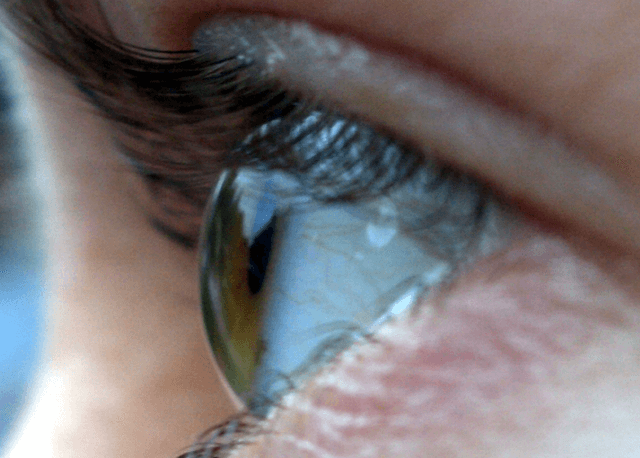 Side-view of the human eye, viewed approximately 90 degrees temporal, illustrating how the iris and pupil appear rotated towards the viewer due to the optical properties of the cornea. Paul Savage. https://www.flickr.com/photos/45202571@N00/60833726/.