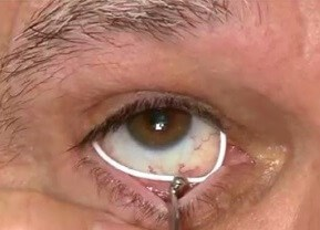 ocular coloboma | fight for sight, Skeleton