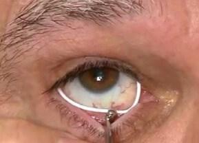 ocular coloboma   fight for sight, Skeleton