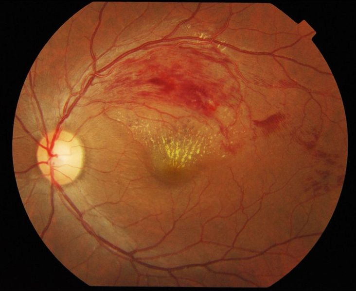 Color fundus photograph of the left eye shows occlusion of the superotemporal branch of retinal vein resulting in intraretinal hemorrhages and retinal exudates in the corresponding sector of retina.